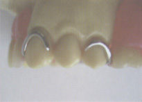 金属バネ式の入れ歯