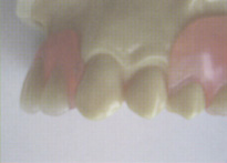 ノンメタルクラスプの入れ歯